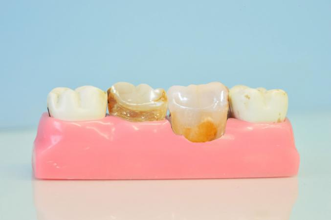 tooth decay model