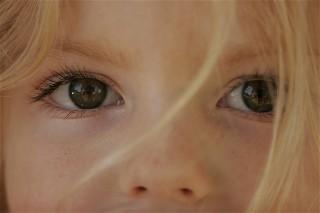 Children with Rett Syndrome