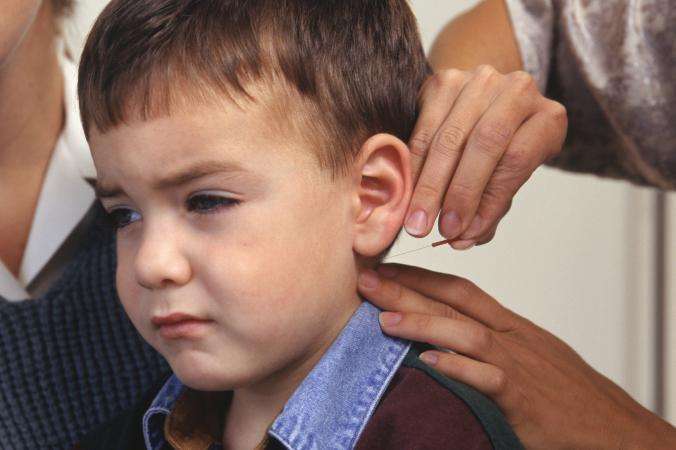 Boy receiving acupuncture behind ear