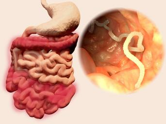 tapeworm diagram