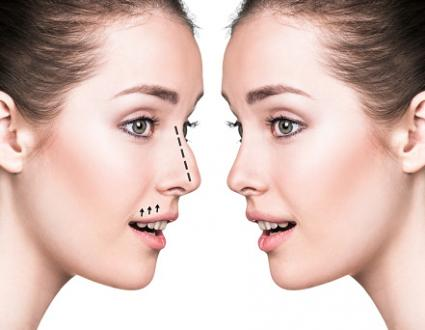 Nose surgery comparative