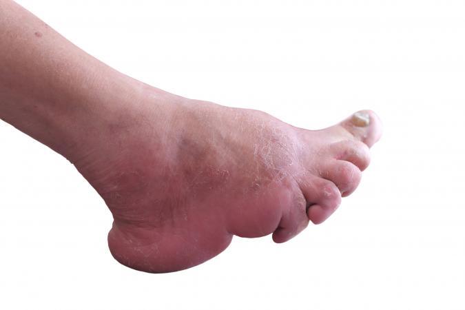 Bound foot