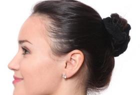 finasteride frontal hair regrowth