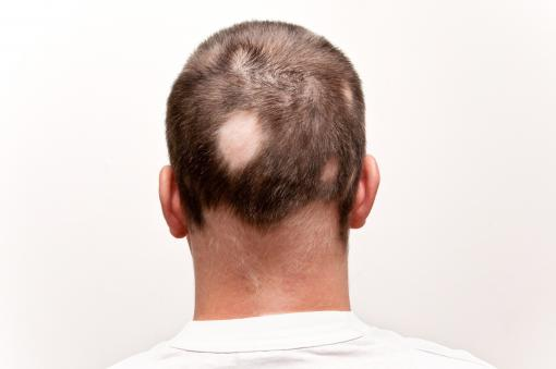 Man with Alopecia
