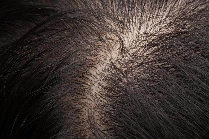 Thinning hair and scalp