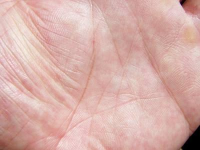 In this hand, the head line and life line are connected.
