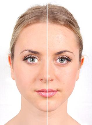 Makeup for acne prone teens