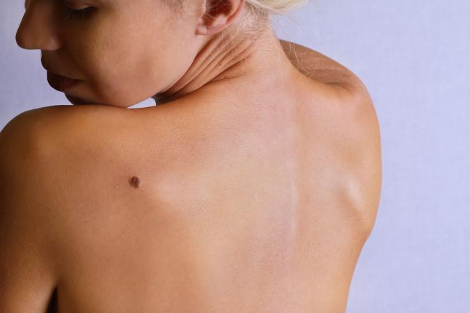 Woman looking at birthmark on back