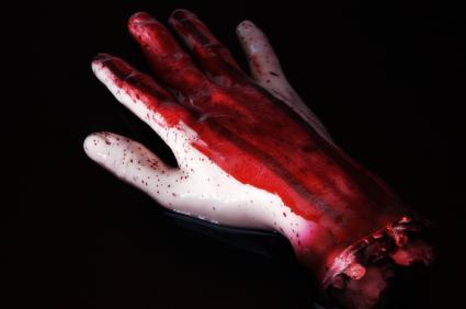Severed hand
