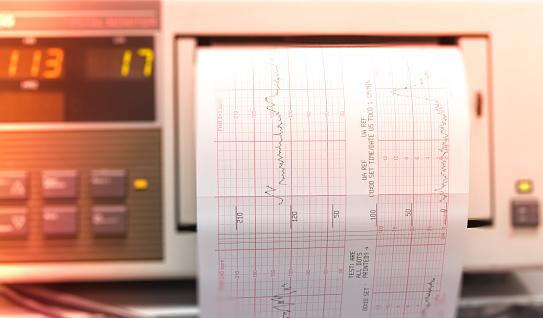 Printing of cardiogram