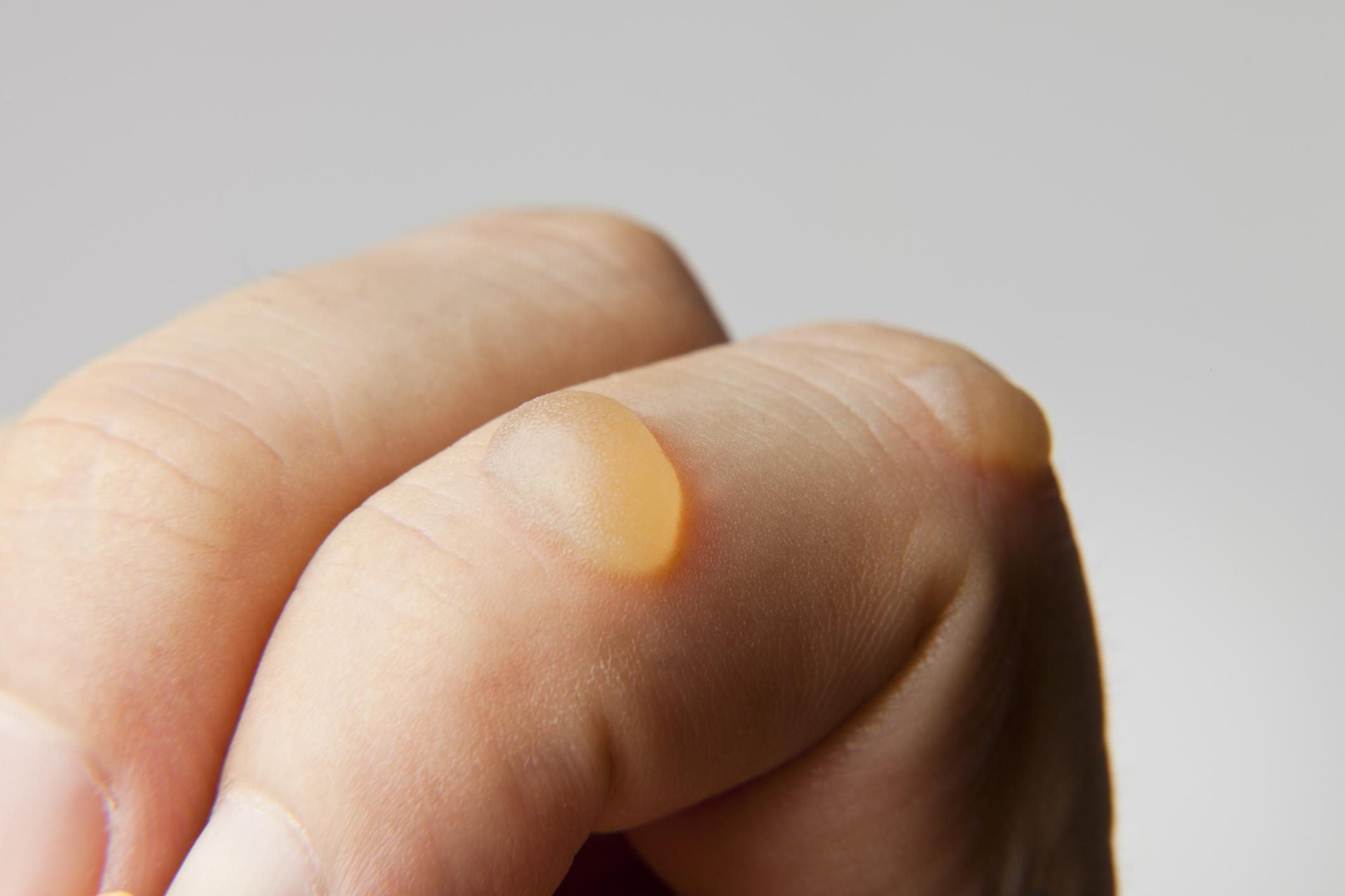 Best 10  Bubble classic ideas on Pinterest | Gold wedding rings ...