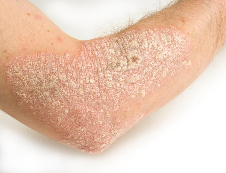 Patch of psoriasis around the elbow area