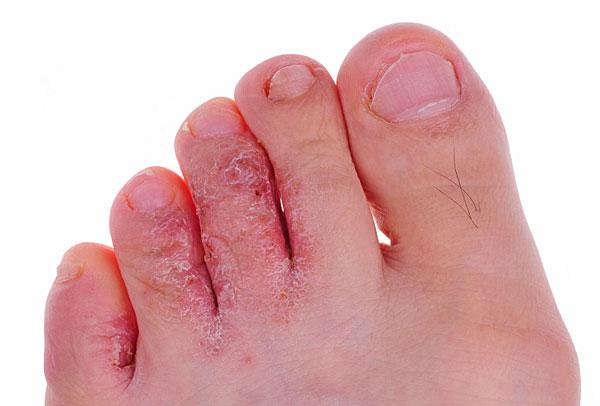 Case of athlete's foot