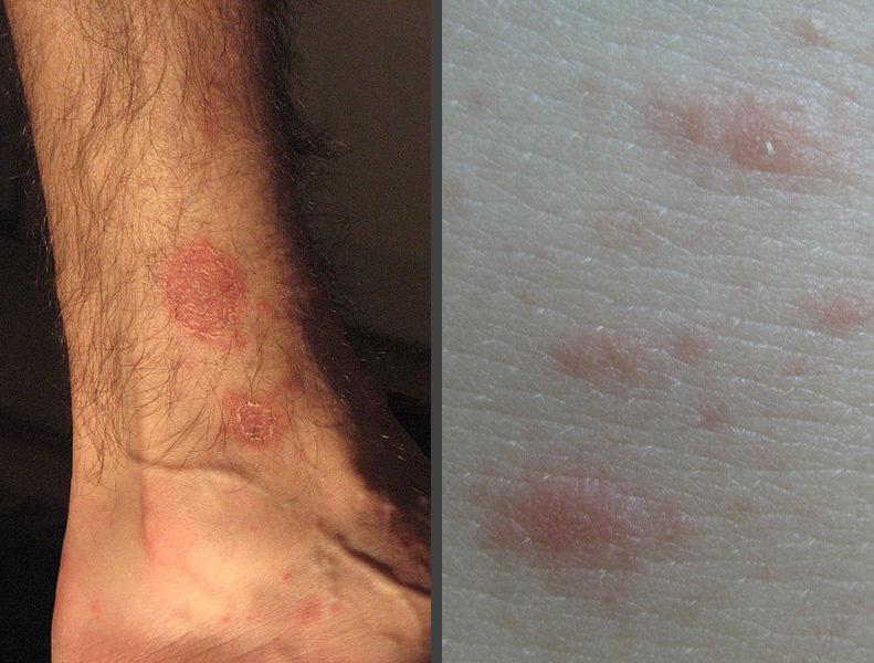 Spreading skin rash very itchy
