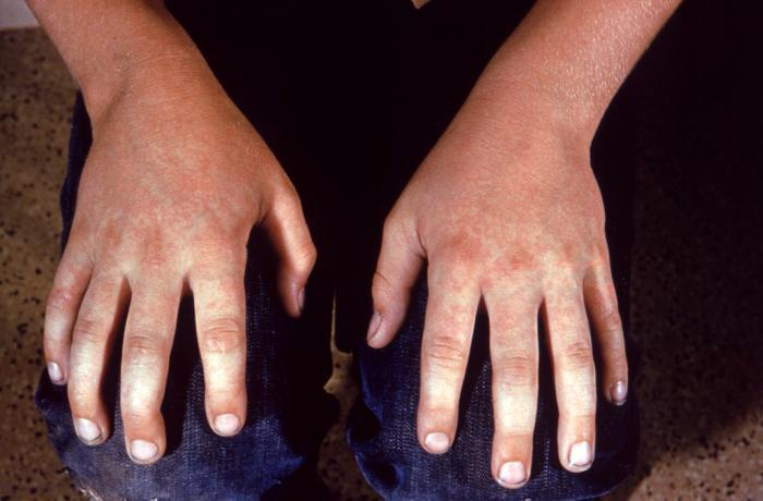 Fifth disease on the hands