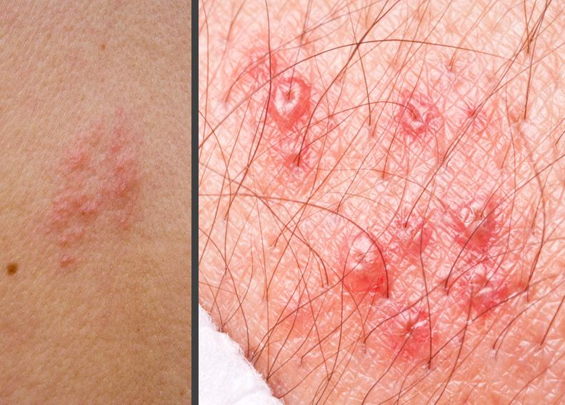 Shingles rash beginning to surface