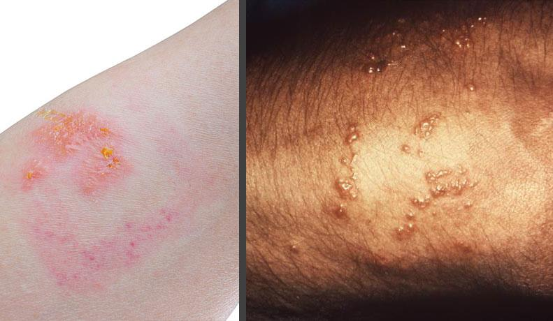 Contact dermatitis caused by contact with poison ivy, oak or sumac