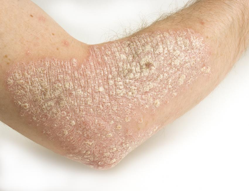 Patch of psoriasis around the elbow area