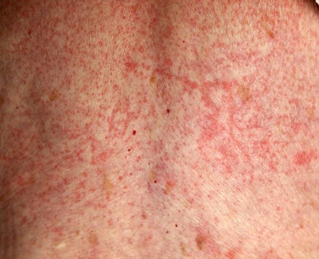 Drug Allergy Rash