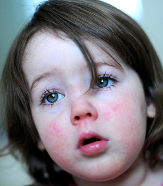 Newborn Rashes and Skin Conditions-Topic Overview - WebMD