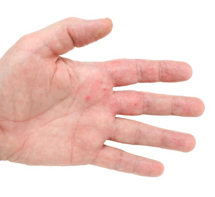 Mild Eczema - Causes, Symptoms, Diagnoses, Treatment ...