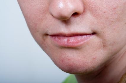 dry skin on chin