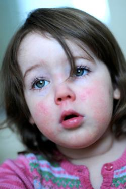 Scarlet fever rash