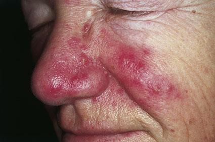 Man with rosacea