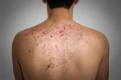 acne and acne scars on back