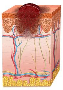melanoma stage 1