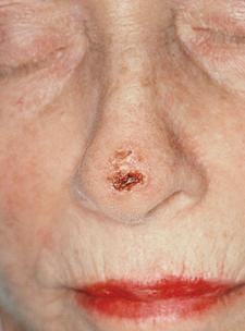 Scabbed lesion on nose
