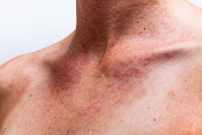 sun allergy rash