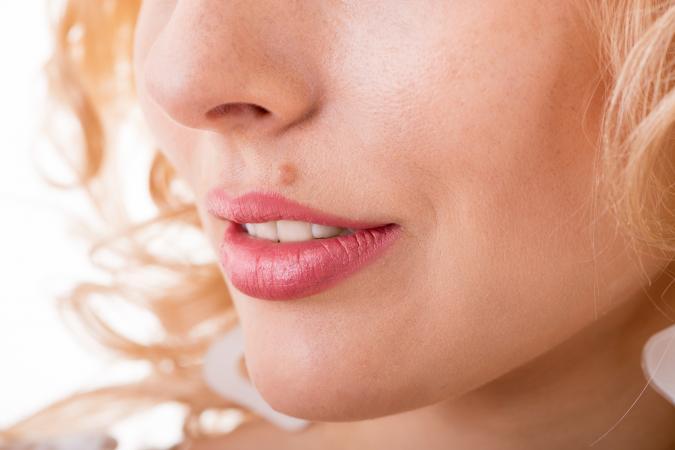 woman with facial mole