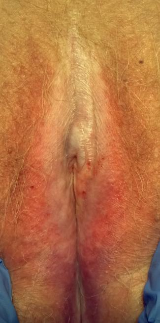 Lichen sclerosus on an 82 year old woman
