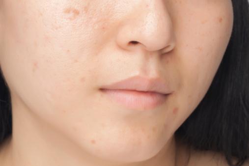 Acne spots