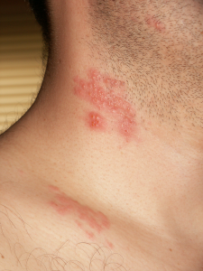 What do the symptoms of shingles appear as on the body?