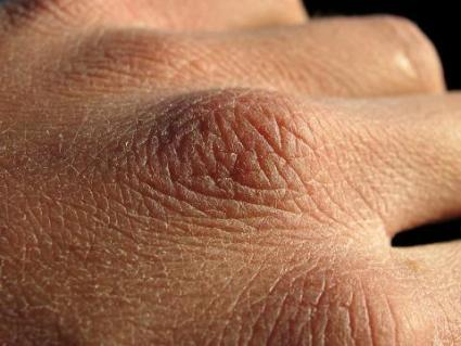 Red Dry Skin On Hands