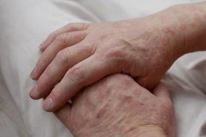 skin rash hands