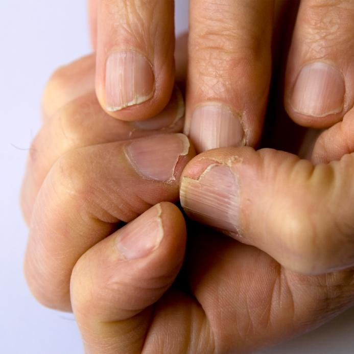 Почему ломаются ногти на руках у мужчин