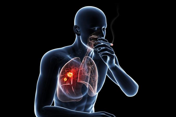 Lung cancer due to smoking