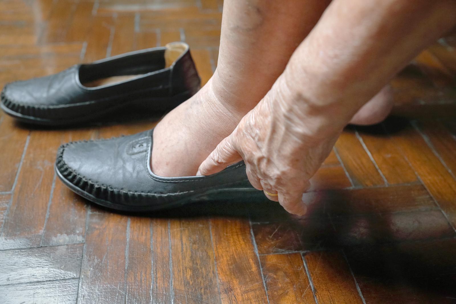 piernas y pies hinchados y morados