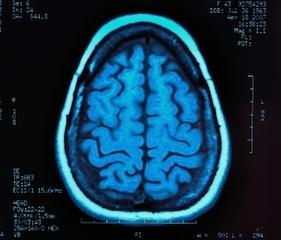 Can a MRI Detect Autism?