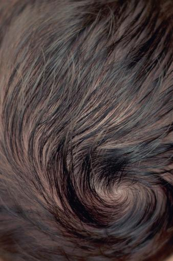 Baby hair whorl
