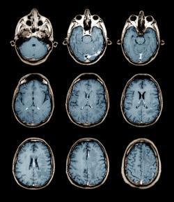 Normal MRI brain scans