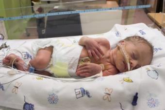 Transcutaneous Oxygen Monitoring in Premature Infants