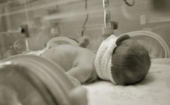 Effects of Resuscitation on Preemie Babies