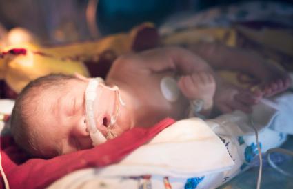 Bebé prematuro en la UCIN