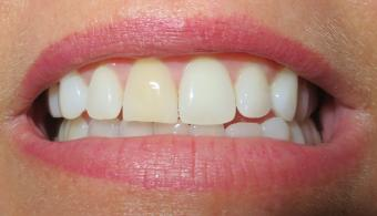 After using teeth whitening products