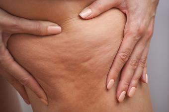 Best Cellulite Treatments