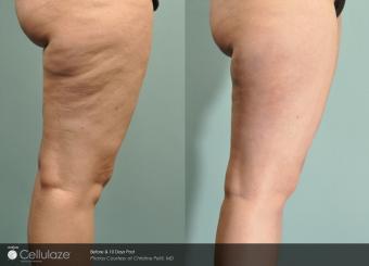 10 days post-treatment with Cellulaze